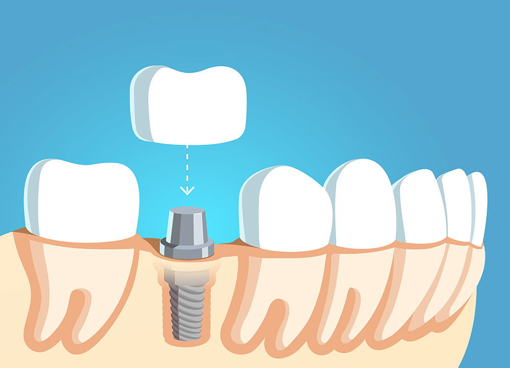illustration of a crown being placed on top of a dental implant