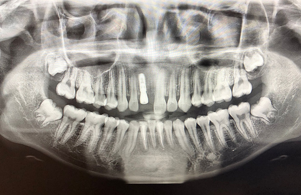 x-ray of and entire set of teeth with a dental implant