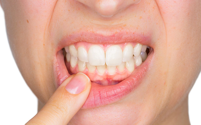 girl pointing to her infected gums and teeth